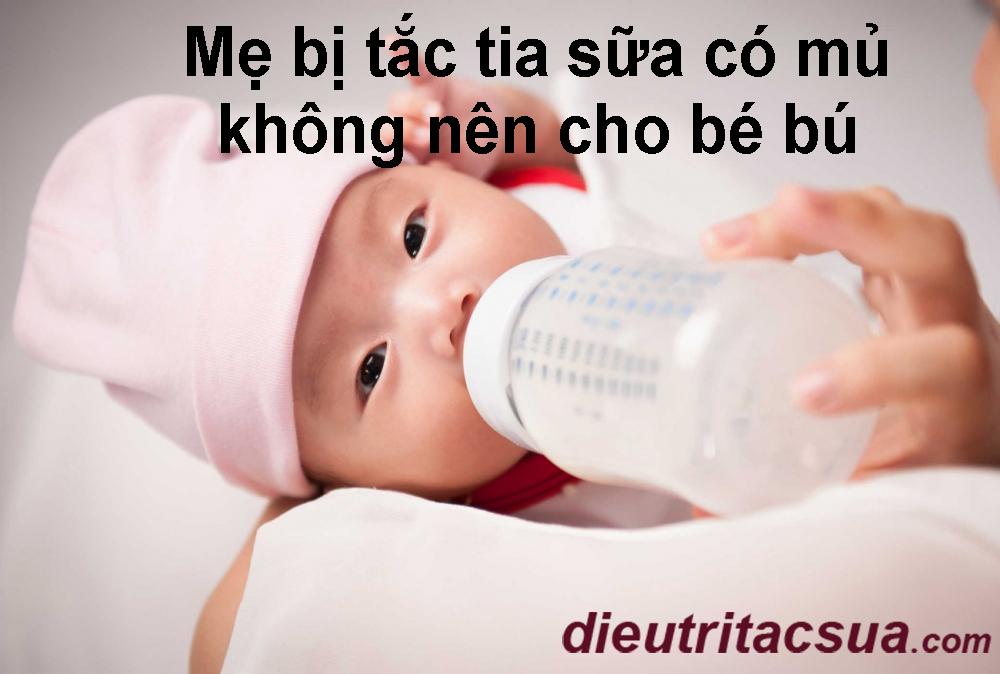 Khi bị tắc tia sữa có mủ, không nên cho bé bú