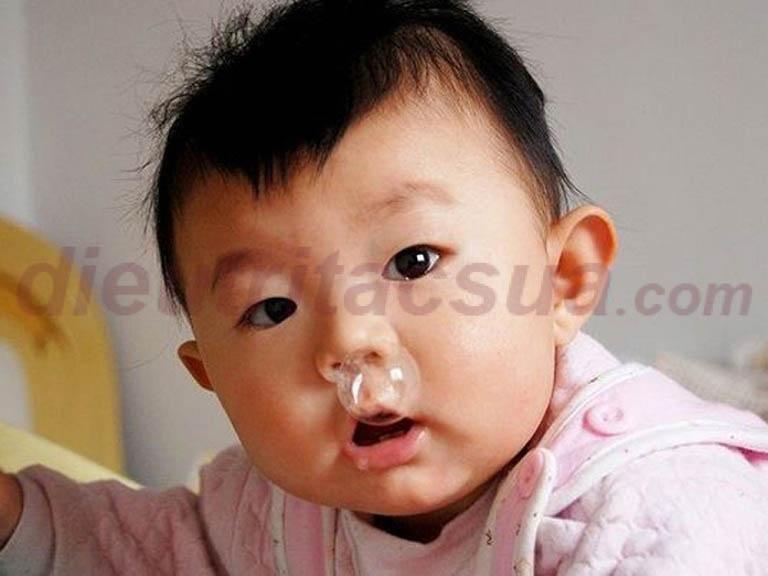 Trẻ sơ sinh bị sổ mũi có thể do nhiều nguyên nhân