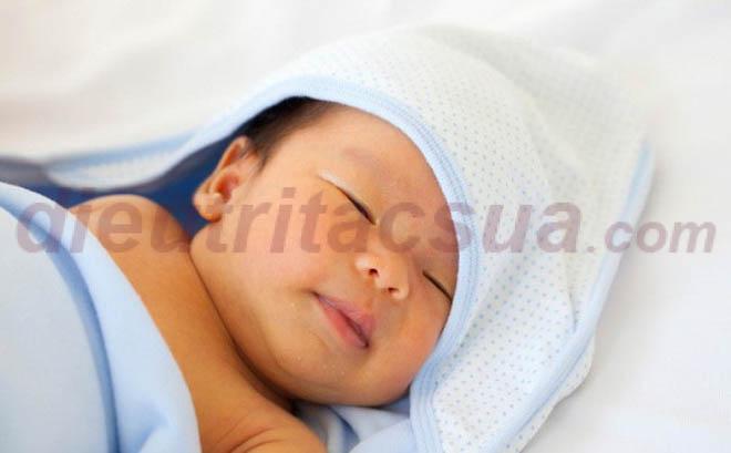 Trẻ sơ sinh bị vàng da sinh lý
